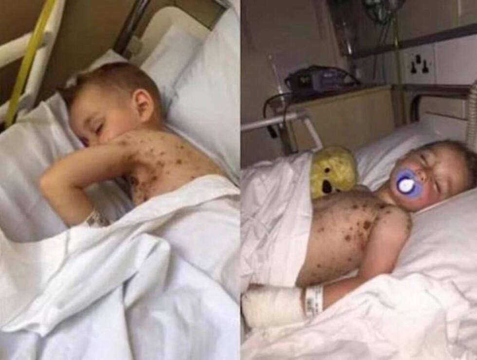 BLE INNLAGT MED BLODFORGIFTNING: Trebarnsmor Hayley Lyons mener bruk av ibuprofen kan være årsaken til at vannkoppene ble forverret. Foto: Privat