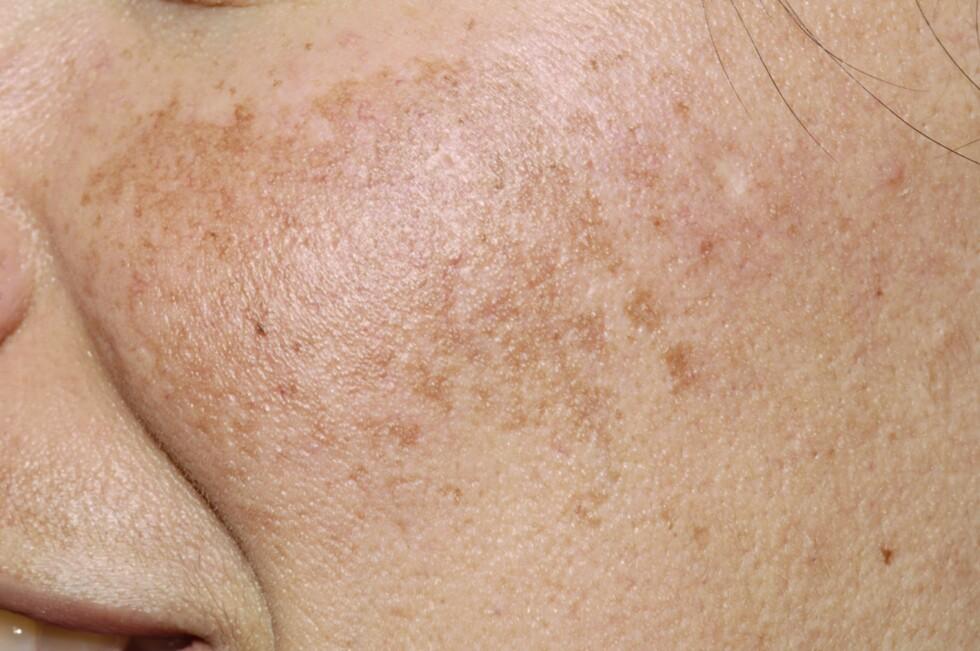 <strong>PIGMENTFLEKKER:</strong> Det er ikke uvanlig at gravide får pigmentflekker i ansiktet.  Foto: NTB Scanpix