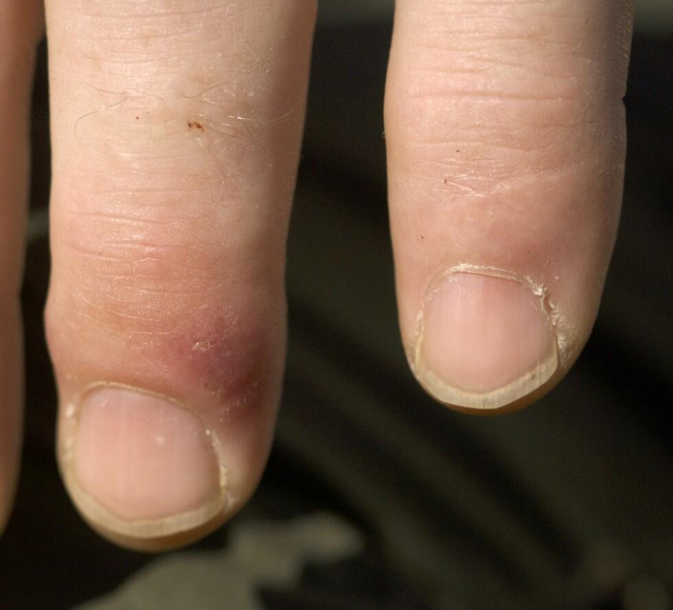 HOGGORMBITT: Fingeren til venstre er rød og mørkere ved selve bittstedet etter virkningen av hoggorm gift.  Foto: Ove Bergersen / NTB Scanpix