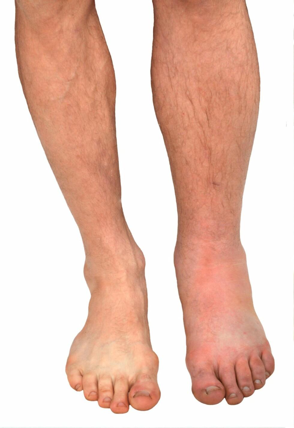 HOGGORMBITT: Høyre ben er hovent etter bitt fra huggorm.  Foto: NTB scanpix