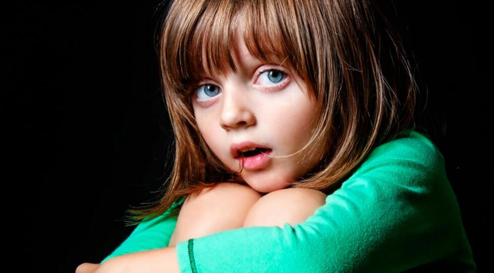 MØRKE SKYGGER UNDER ØYNENE OG HØYT AKTIVITETSNIVÅ: Barns tegn på lite søvn Foto: Shutterstock ©