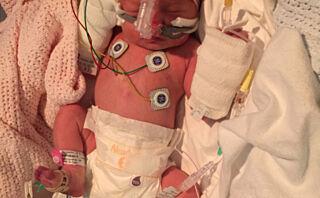 Lone-Leandra ble født i uke 34 med en svært sjelden hjertefeil