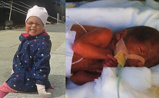 Mailin (5) ble født ekstrem prematur