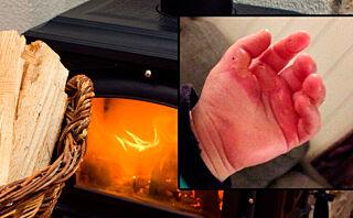 Brannskader: De minste er tolv ganger mer utsatt