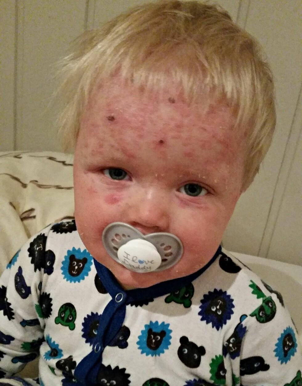 TAPPER LITEN KAR: Som atopiker er Felix mer utsatt for hudinfeksjoner som følge av barnesykdommer. I sommer fikk han vannkopper, noe som førte til at eksemet blusset kraftig opp. Foto: Privat