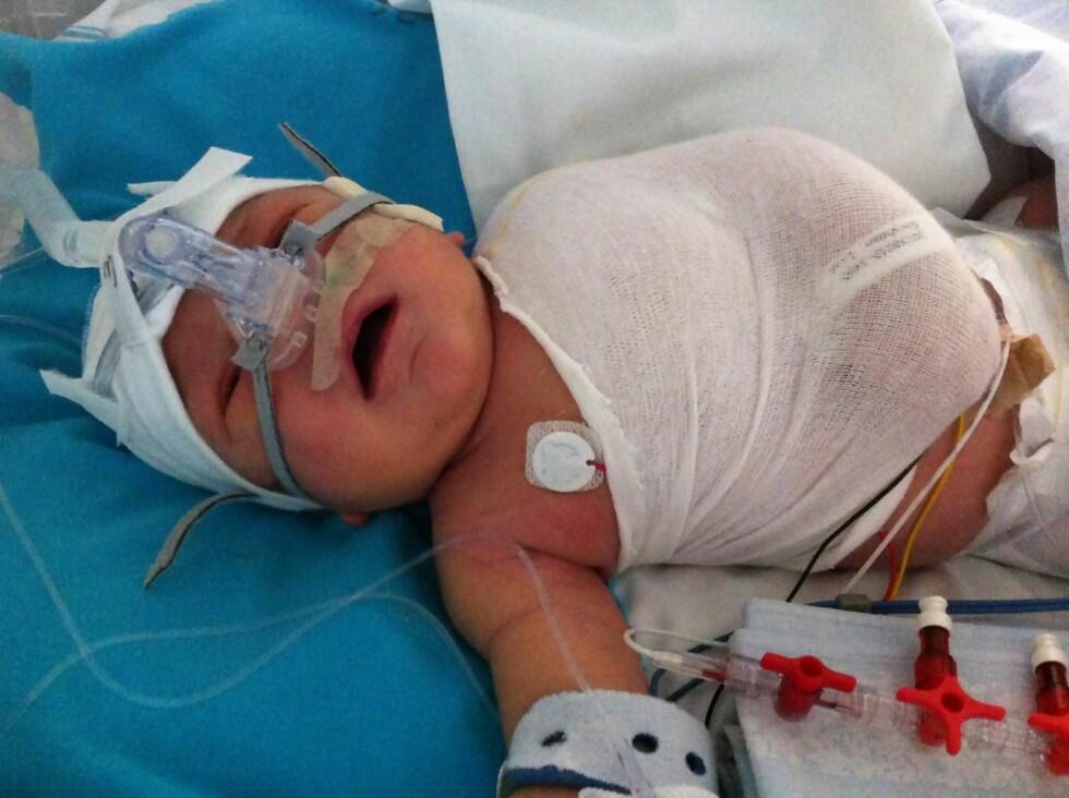 FØDT MED HJERTEFEIL: Lille Liam måtte gjennom åpen hjerteoperasjon da han bare var ni dager gammel.  Foto: Privat