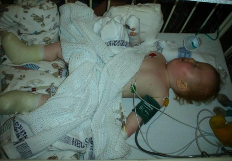 MANGE OPERASJONER: Christoffer har vært gjennom et titalls operasjoner i sitt unge liv. Foto: Privat