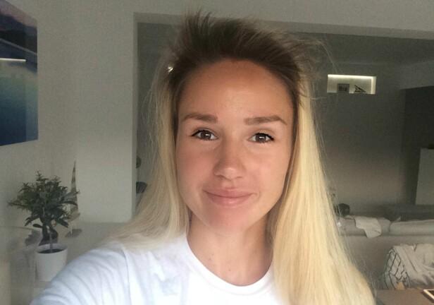 ENDRET HÅRFARGE: I tillegg til håravfall, har Rachel Nordtømme også oppdaget at håret er blitt mørkere. Foto: Privat