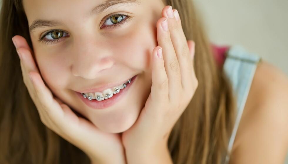 TANNREGULERING BARN: Den høye prisen for tannregulering til barn kan komme som en overraskelse på foreldre. Foto: Shutterstock / NTB scanpix