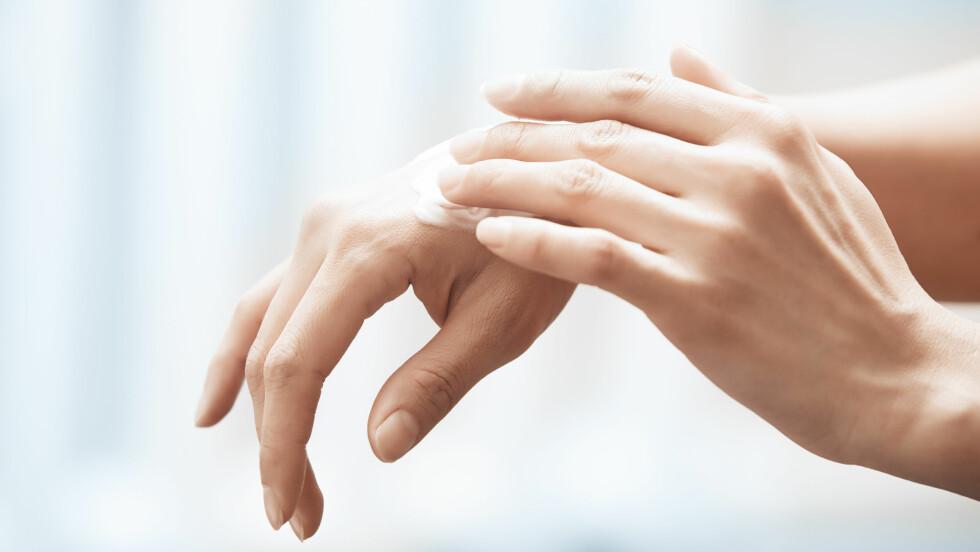 PÅ HENDENE: Mange av oss opplever å få veldig tørre hender denne tiden på året. Den beste måten å forhindre dette på er å bruke votter og håndkrem! Få flere tips og forklaring på hvorfor det skjer nede i saken. Foto: Shutterstock / Arman Zhenikeyev