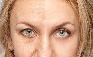 Pigmentflekker: hva slags behandling er best?