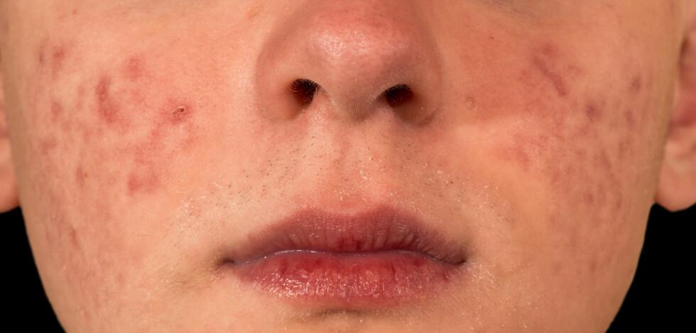KVISER: Er som regel opphopning av talg, bakterier og urenheter i porene. Bakterier fra hendene dine kan føre til tette porer og urenheter.  Foto: F.C.G. - Fotolia