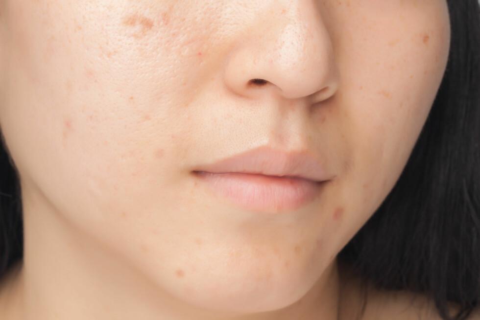 <strong>PIGMENTFLEKKER:</strong> Sliter du med pigmentflekker eller ujevn hud, er eksfolieringen ekstra viktig.  Foto: phasinphoto - Fotolia