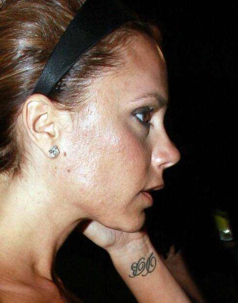 "<strong>RAMMET:</strong> Victoria Beckham har den typiske ""voksenaknen"". Foto: All Over Press"