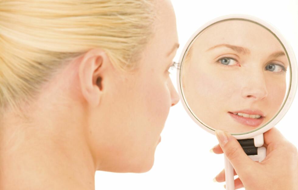 PLAGSOMME PRIKKER: Både svarte prikker og hudormer er plagsomme og ikke særlig lekre. Eksfolier huden et par ganger i uka, helst med en fruktsyrepeeling, for å forbedre huden, sier eksperten. Foto: Getty Images/iStockphoto