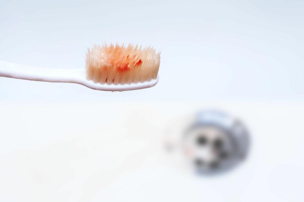BLOD: Tannkjøttbetennelse er den vanligste årsaken til at du blør fra tannkjøttet. Foto: Shutterstock / Little Perfect Stock