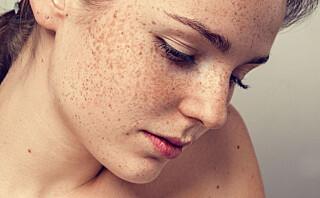 - Cirka fem prosent av verdens befolkning utvikler autoimmun sykdom og av disse er 78 prosent kvinner