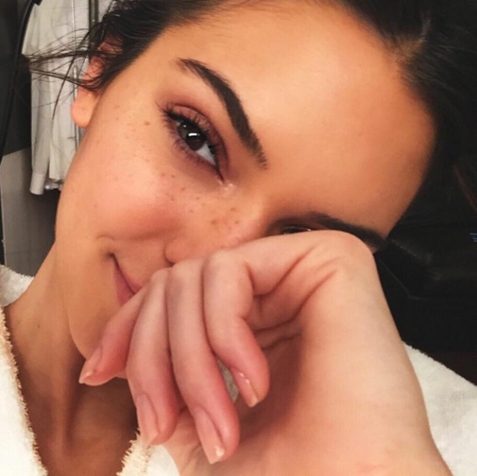 SMINKEFRI: Kendall Jenner har en skjønnhet som mange misunner henne, men i likhet med oss andre opplever 20-åringen å ha urenhud. Nå deler hun sine enkle skjønnhetstips med fansen! Foto: NTB Scanpix