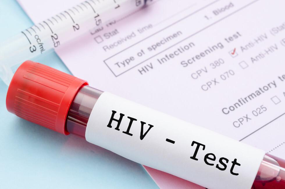 HIV-TEST: Dersom du tror du kan ha bli smittet anbefaler ekspertene å ta en gratis hiv-test for å være på den sikre siden. Foto: Shutterstock / Gam1983
