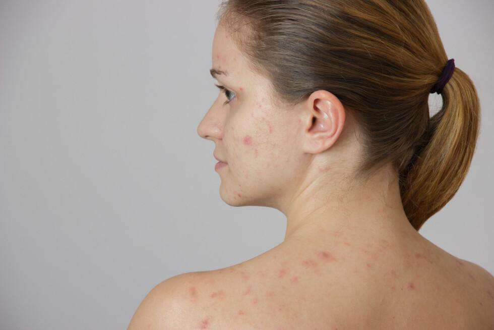 TRENGER LEGEHJELP: Brystet, skuldrene og ryggen er typiske områder som kan være rammet av kviser, og det er ikke uvanlig at gener og hormoner er årsaken. Foto: Shutterstock / Oksana Volina