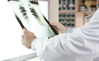 Lungekreft øker fortsatt blant kvinner