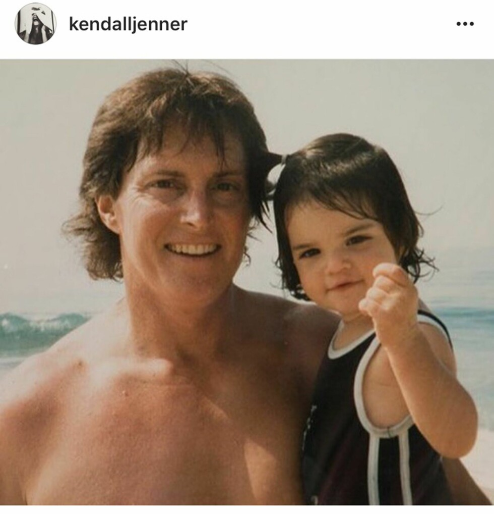 FRA BRUCE TIL CAITLYN: Her er Kendall på armen til pappa Bruce da hun var liten. I intervjuet med Vogue innrømmer hun at farens kjønnsskifte har vært vanskelig. Foto: Xposure