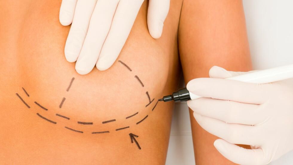 <strong>BRYSTOPERASJON:</strong> Noen kvinner kan ha krav på å få brystoperasjon dekket av staten. Foto: Shutterstock / CandyBox Images