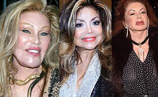 9 kjendiskvinner som tok plastisk kirurgi litt vel langt...