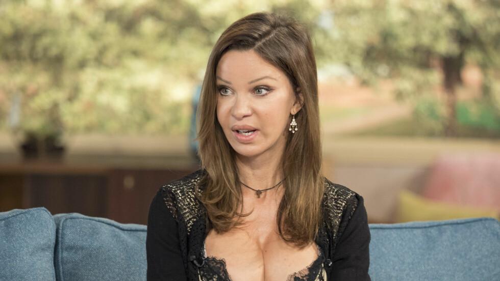 AVHENGIG AV PLASTISK KIRURGI: Tidligere glamourmodell Alicia Douvall (36) var avhengig av plastisk kirurgi, men har klart å bli frisk. Nå deler hun sin historie.  Foto: Rex Features
