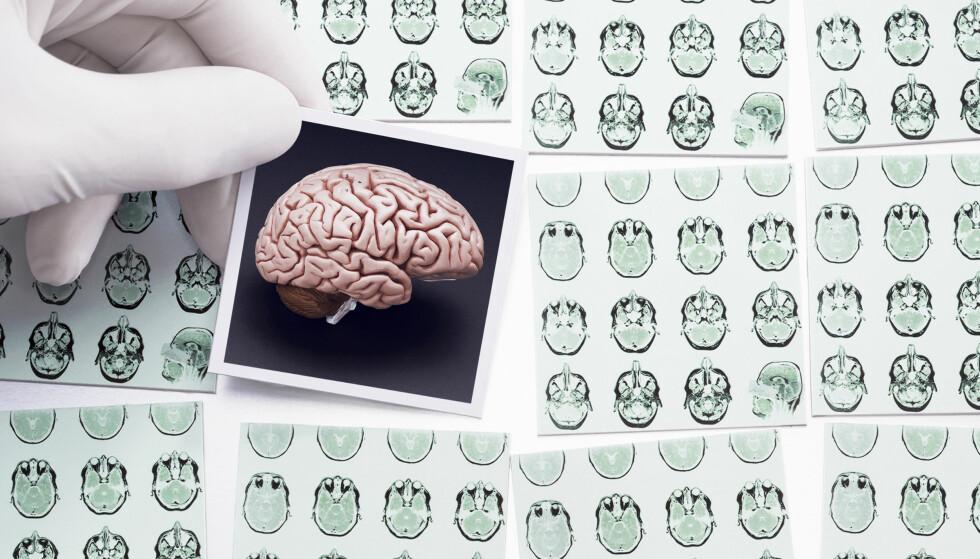 Så mye energi bruker hjernen din hver dag