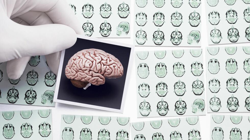 TRENGER ENERGI: Hjernen din stikker av med så mye som en femtedel av energien du forbrenner hver dag, men det betyr ikke at du trenger noe mer mat på jobb enn når du gjør andre ting. Foto: Plainpicture