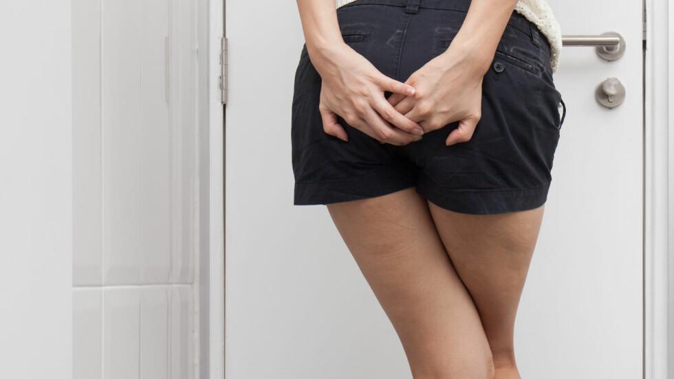 VANLIG PROBLEM: Nærmere én tredjedel av oss opplever å få hemoroider en eller annen gang i livet. Tips til hvordan du kan unngå, eller bli kvitt problemet får du i denne artikkelen! Foto: Shutterstock / GongTo