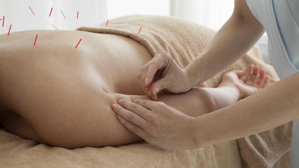 NÅLER: I Norge har vi en offentlig godkjent treårig fulltids-bachelorgrad i akupunktur, og akupunktur er nok den alternative behandlingsformen som er mest akseptert blant helsepersonell. Foto: Shutterstock / Leonardo da