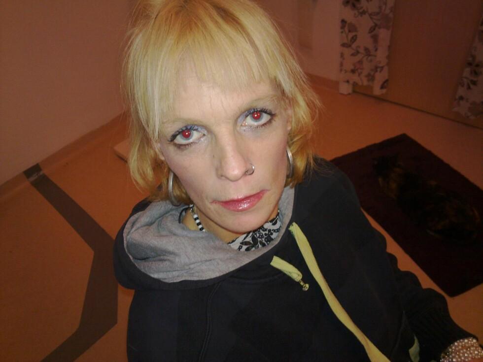 NÅDDE BUNNEN: Etter mange år som narkoman var Iris syk og veide 43 kilo. Foto: Privat