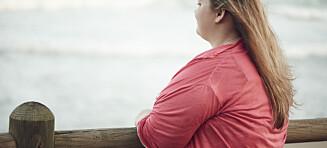 Over 50 prosent er overvektige, nå slår ekspertene alarm: - Det er svært alvorlig