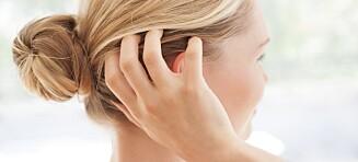 Har du tørr og irritert hodebunn?