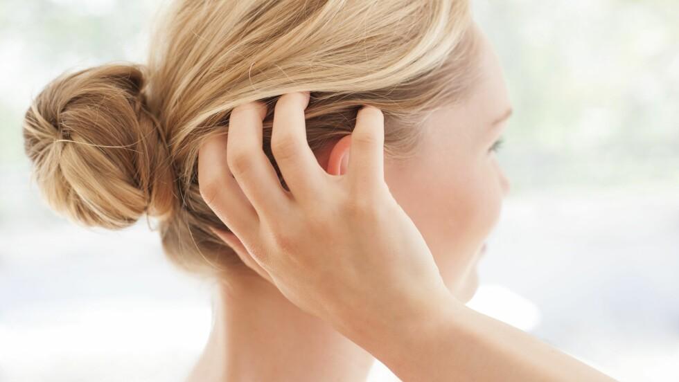 HODEBUNN: Mange har problemer med hodebunnen og noe så enkelt som balsam kan faktisk hjelpe!  Foto: Science Photo Library
