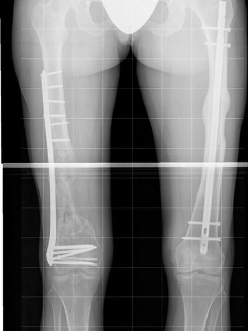 OMFATTENDE OPERASJON: Karina måtte opereres over 20 ganger etter fallskjermulykken. I høyrebeinet har hun fått erstattet lårbeinet med en 12cm lang jernskinne. Foto: Foto: Privat