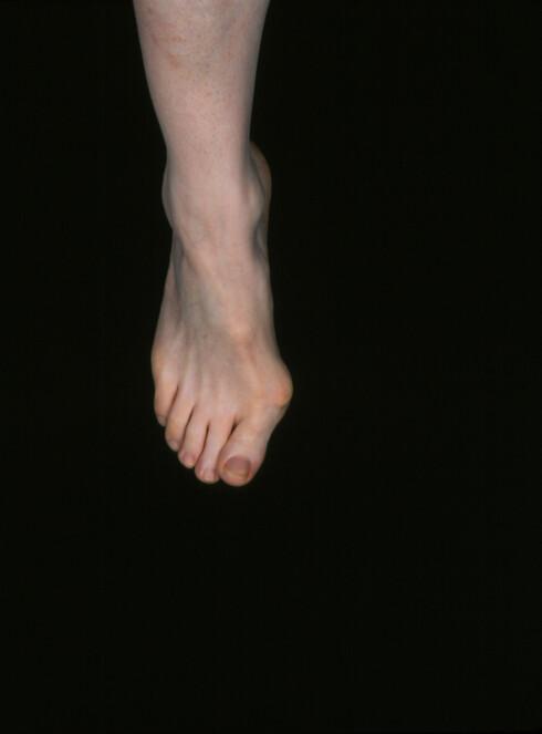 SMERTEFULT: En økende vinkling innover av stortåen, kan føre til hovenhet og store smerter. Foto: Science Photo Library