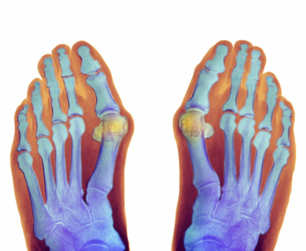 HOVENT LEDD: Går du ofte med trange sko, kan det føre til at hovedleddet i stortåen hovner opp og tilstanden hallux valgus forekommer. Foto: Science Photo Library