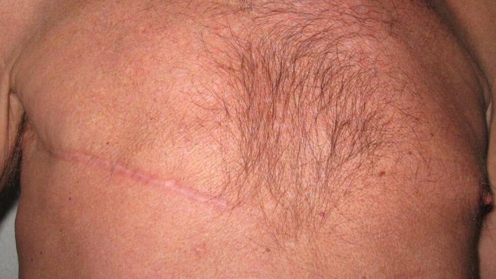 ARR ETTER OPERASJON: Ivar Strømstad måtte fjerne deler av sitt høyre bryst etter kreftoperasjonen i 2009. Ifølge ekspertene fjerner alle menn som får påvist brystkreft deler av brystene, ettersom det er lite å ta av i utgangspunktet. Foto: Privat / Ivar Stømstad