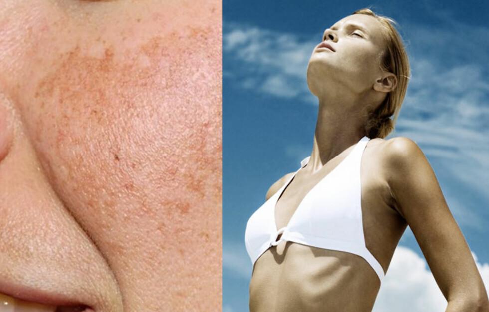 P-piller og soling kan føre til at du utvikler lidelsen melasma, som gir brune flekker i huden. Foto: Colourbox
