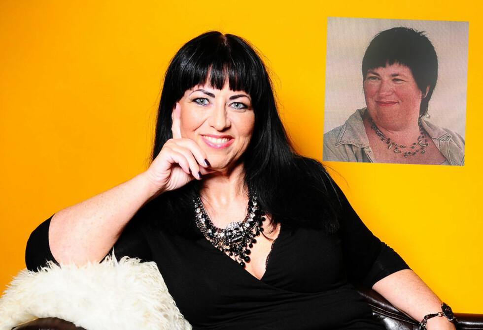 SLANKEOPERERT: Mari-Mette før og etter slankeoperasjonenoperasjonen