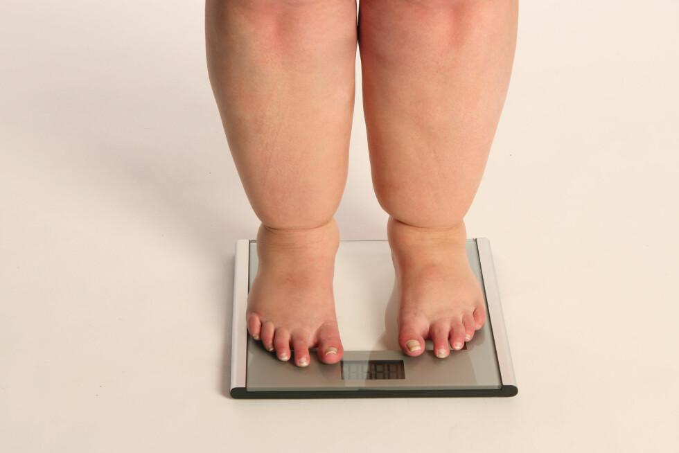 SYKDOMMER: Om overvekten hos det norske folk fortsetter å stige kan vi forvente en rekke fedme-relaterte sykdommer i fremtiden.  Foto: Heidi Mehl - Fotolia