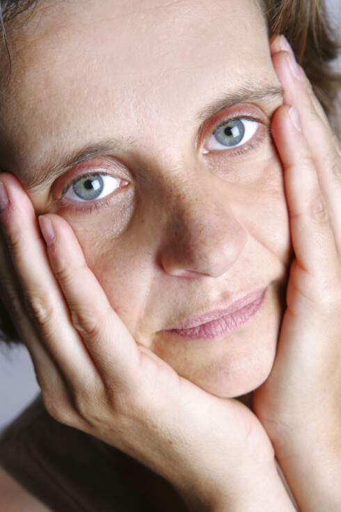 GUSTEN HUD: Huden mister sitt naturlige volum og blir lettere slapp og rynkete.  Foto: © Miguel Rosan