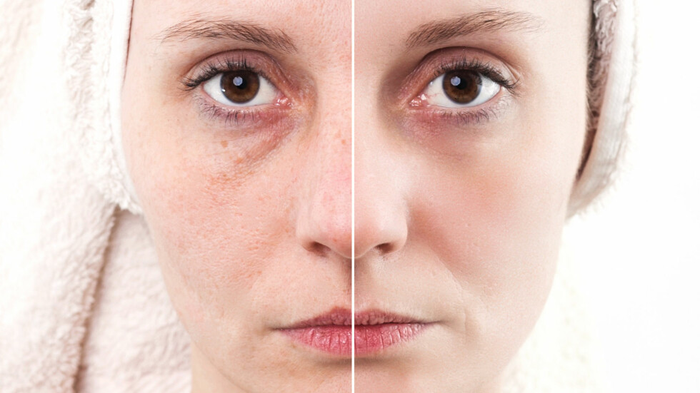 STRESS: Stresshormonet kortisol virker stort sett uheldig over 300 steder i kroppen - blant annet på hud, hår og muskulatur. Det kan med andre ord føre til for eksempel kviser, rynker og poser under øynene. Foto: Melinda Nagy - Fotolia