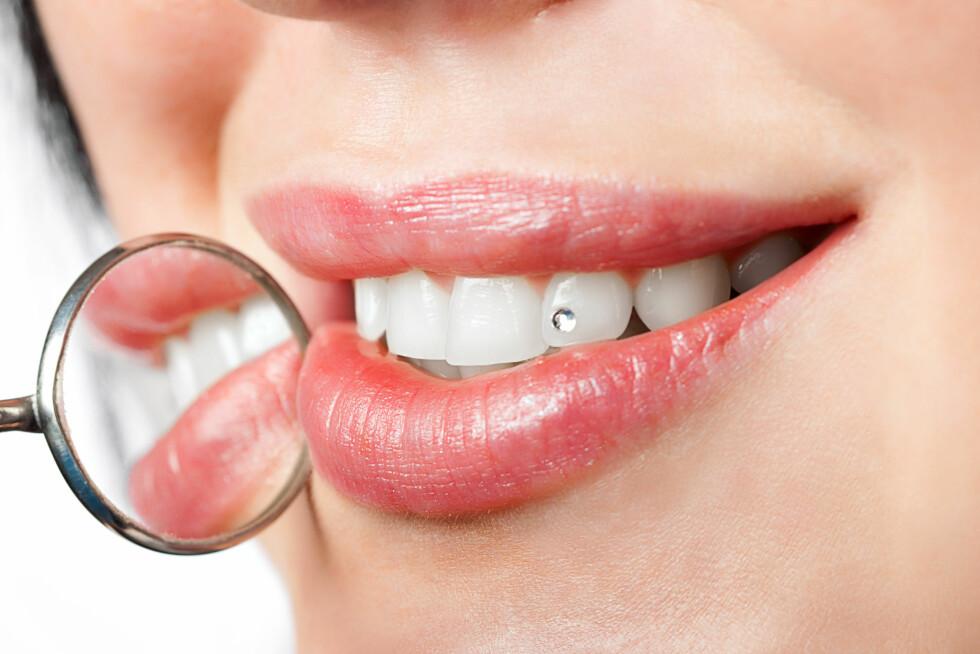 PASS PÅ TENNENE: Syren i enkelte mat- og drikkevarer kan skade emaljen fra utsiden, mens sukkerholdige matvarer lettere fører til karies som skader tannen fra innsiden. Foto: Scanpix/NTB