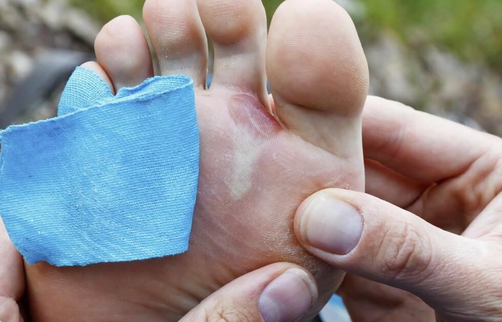 UNNGÅ GNAGSÅR: Noe av det viktigste for å unngå gnagsår er fottøyet ditt, men det er også vært viktig hvordan du knyter dem.  Foto: Thinkstock.com