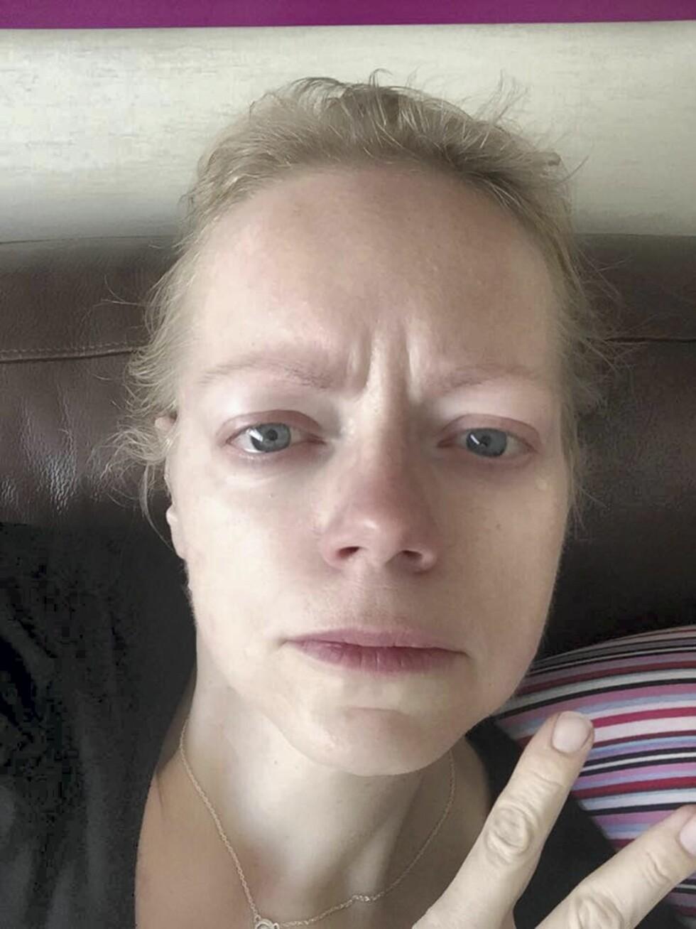 REDD: Ine var livredd før hun fikk svarene på analyseprøvene etter operasjonen, da hun tok denne selfien.  Foto: Privat