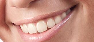 Lyst til å bleke tennene?